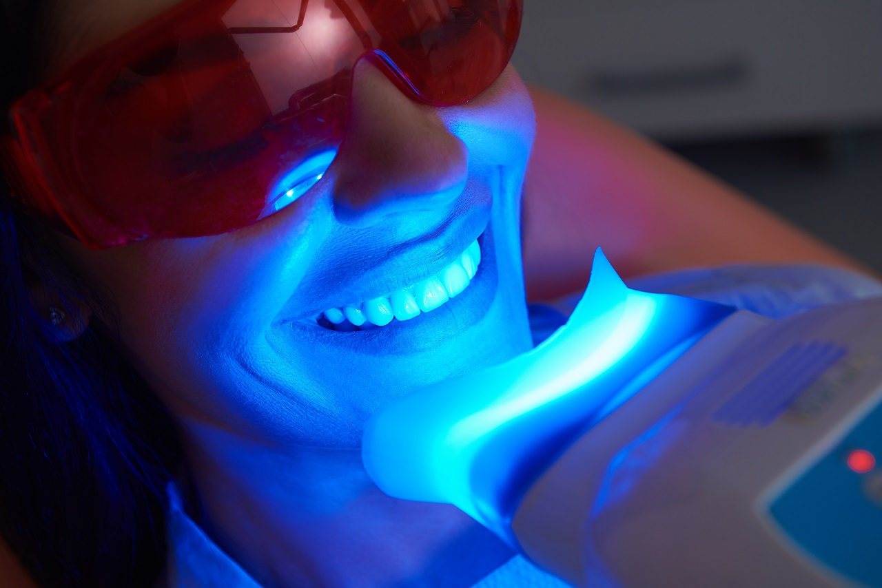 Czy wybielanie zębów jest bezpieczne?